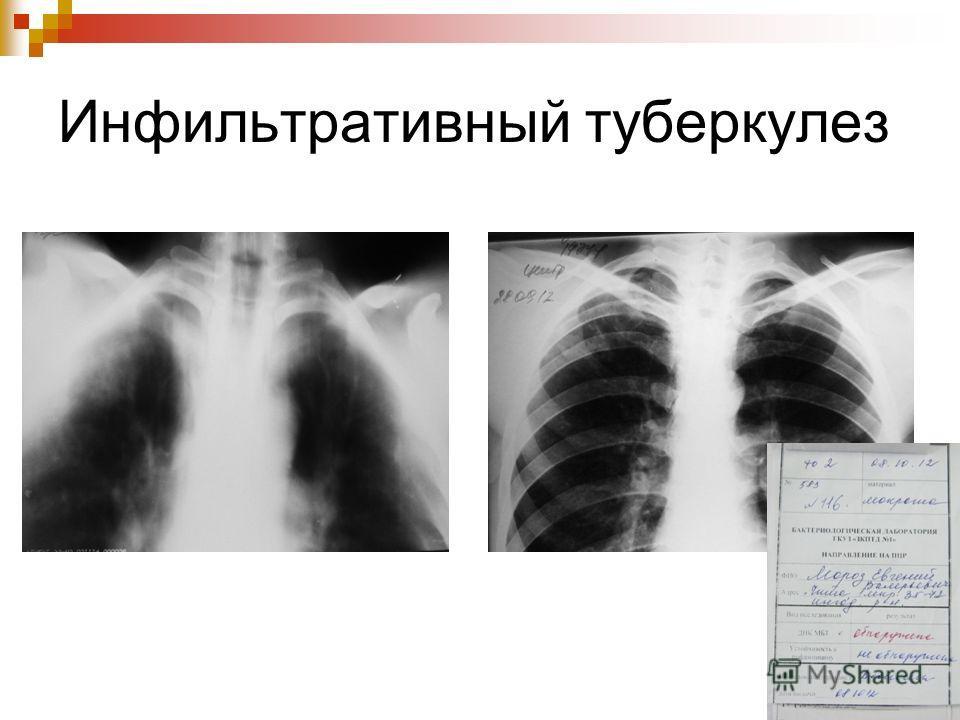 Инфильтративный туберкулез