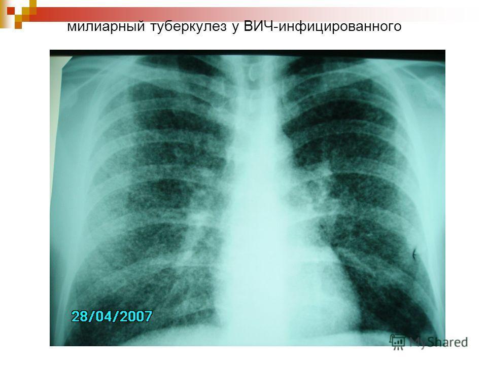 милиарный туберкулез у ВИЧ-инфицированного