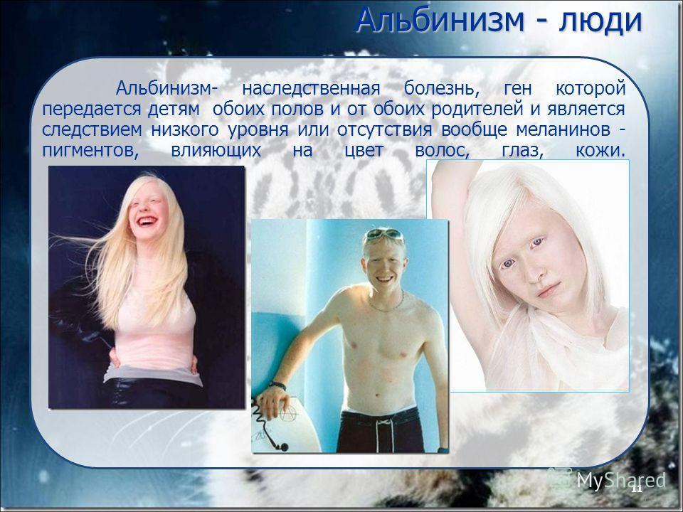 11 Альбинизм - люди Альбинизм- наследственная болезнь, ген которой передается детям обоих полов и от обоих родителей и является следствием низкого уровня или отсутствия вообще меланинов - пигментов, влияющих на цвет волос, глаз, кожи. 11