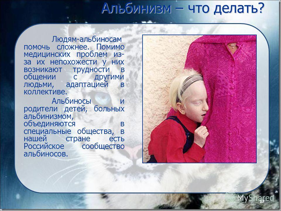 17 Альбинизм – что делать? Людям-альбиносам помочь сложнее. Помимо медицинских проблем из- за их непохожести у них возникают трудности в общении с другими людьми, адаптацией в коллективе. Альбиносы и родители детей, больных альбинизмом, объединяются