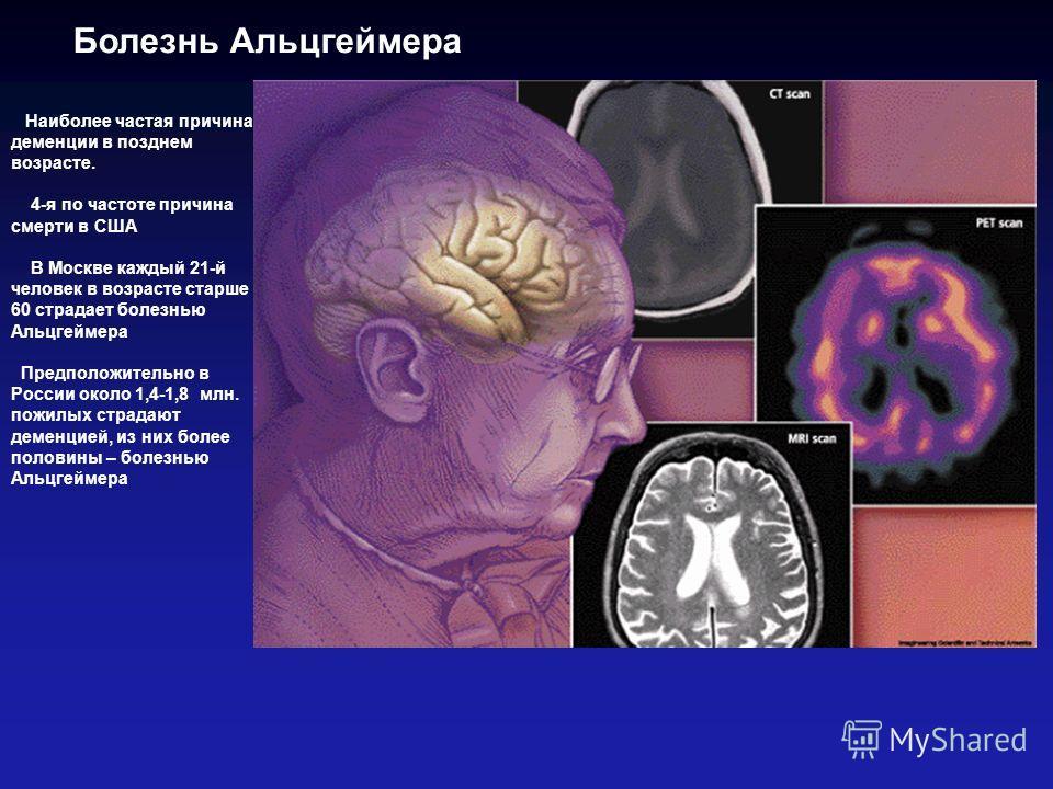 Наиболее частая причина деменции в позднем возрасте. 4-я по частоте причина смерти в США В Москве каждый 21-й человек в возрасте старше 60 страдает болезнью Альцгеймера Предположительно в России около 1,4-1,8 млн. пожилых страдают деменцией, из них б