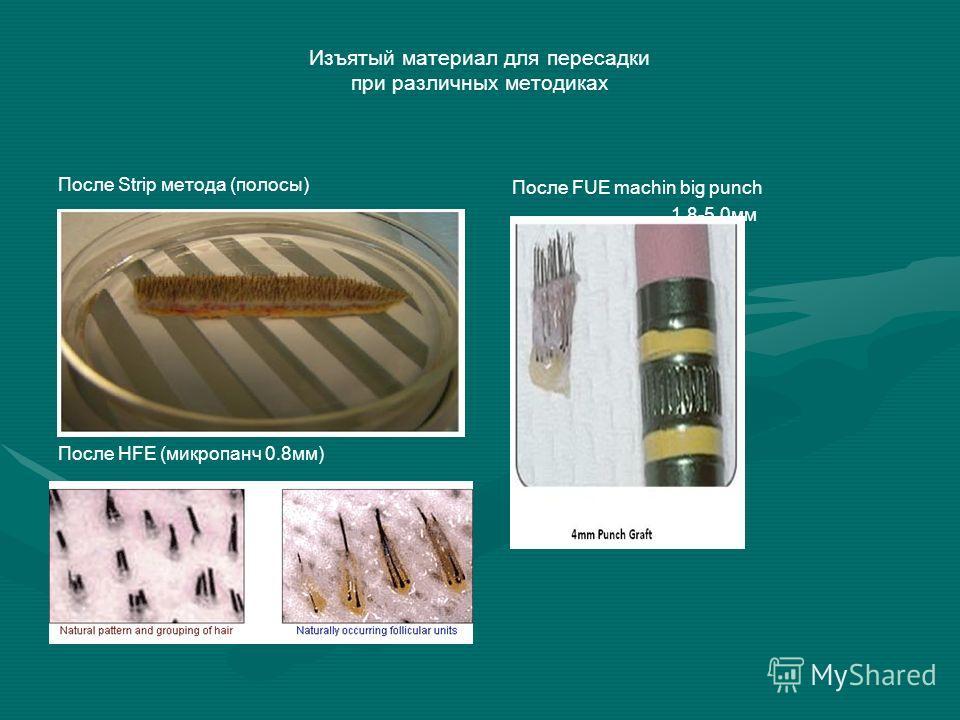 Изъятый материал для пересадки при различных методиках После Strip метода (полосы) После HFE (микропанч 0.8 мм) После FUE machin big punch 1.8-5.0 мм