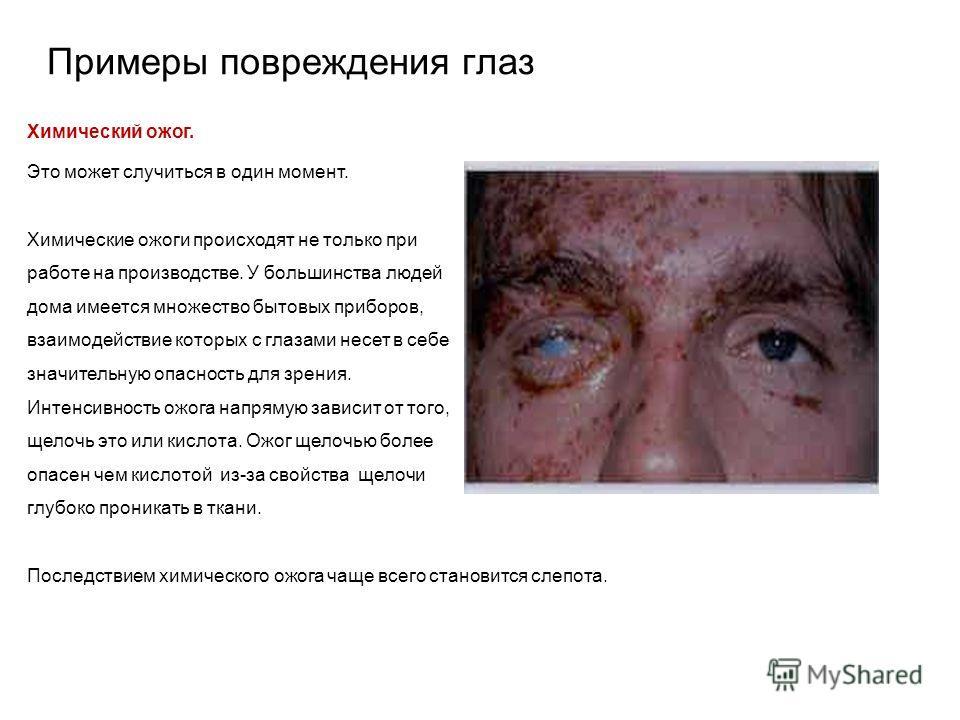 Виды травмирующих факторов Как показывает практика, глаза могут быть повреждены вследствие: механического воздействия: удары, пыль, твердые частицы, металлические осколки, песок; химического воздействия: брызги и выбросы жидкостей (растворителей, аэр