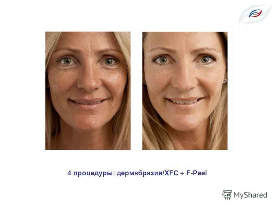 4 процедуры: дермабразия/XFC + F-Peel