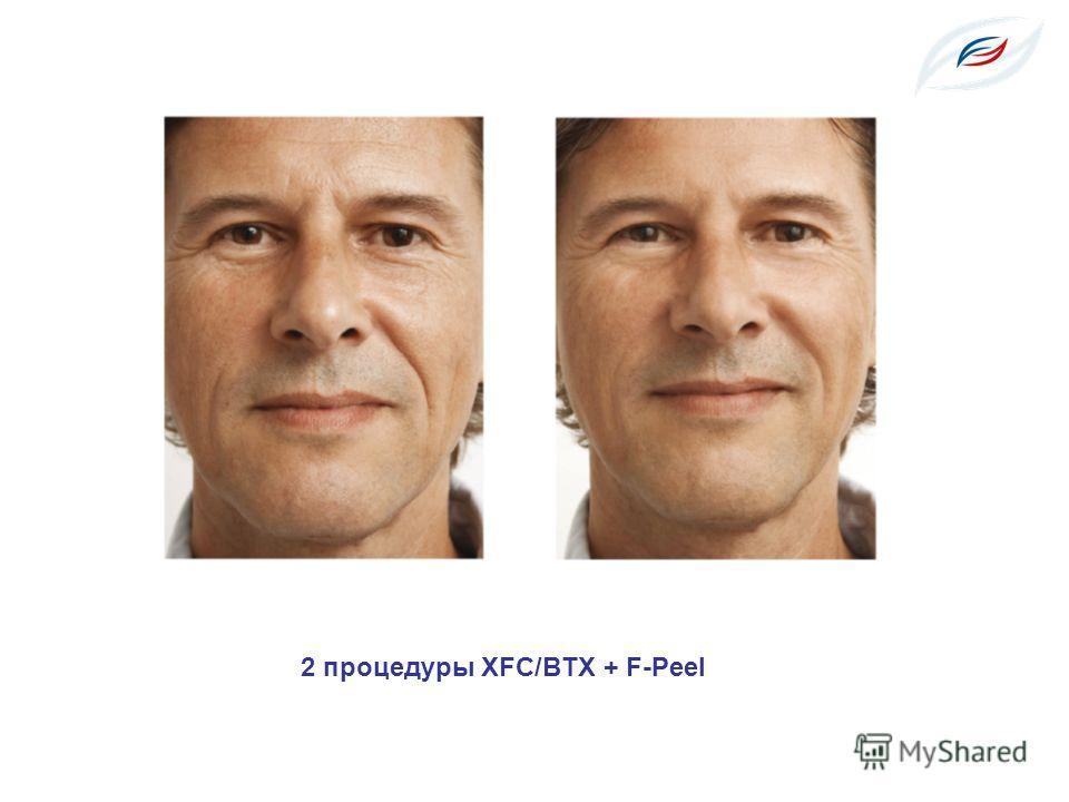 2 процедуры XFC/BTX + F-Peel