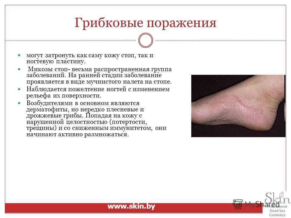 Грибковые поражения могут затронуть как саму кожу стоп, так и ногтевую пластину. Микозы стоп- весьма распространенная группа заболеваний. На ранней стадии заболевание проявляется в виде мучнистого налета на стопе. Наблюдается пожелтение ногтей с изме