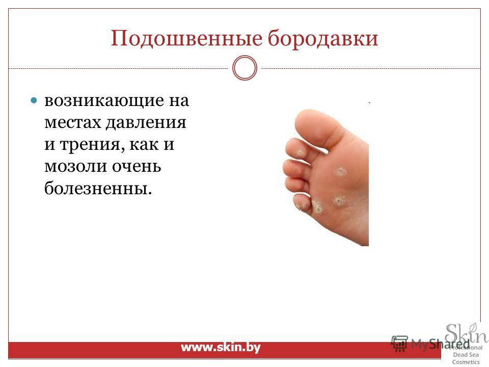 Подошвенные бородавки возникающие на местах давления и трения, как и мозоли очень болезненны. www.skin.by
