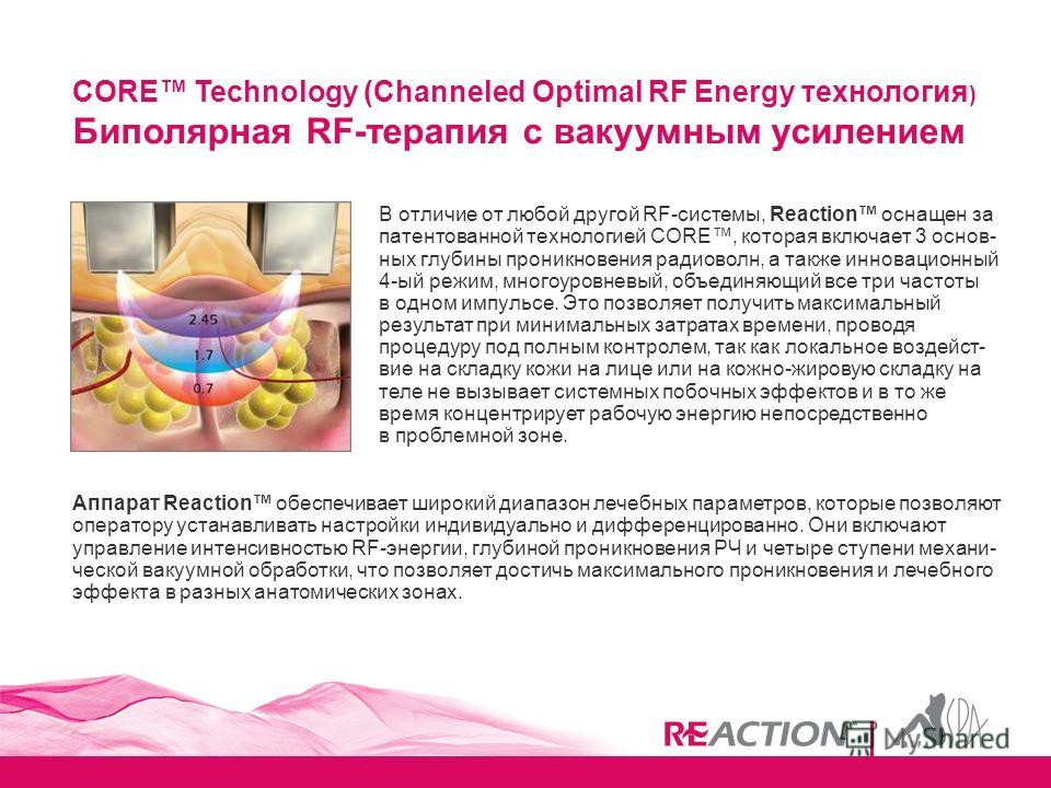 CORE Technology (Channeled Optimal RF Energy технология ) Биполярная RF-терапия с вакуумным усилением В отличие от любой другой RF-системы, Reaction оснащен за патентованной технологией CORE, которая включает 3 основ- ных глубины проникновения радиов