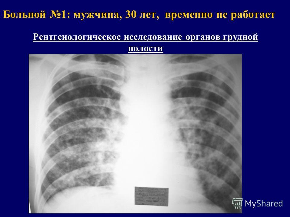 Больной 1: мужчина, 30 лет, временно не работает Рентгенологическое исследование органов грудной полости