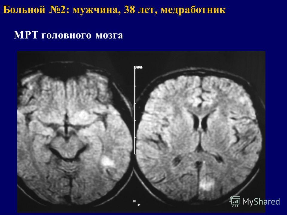 Больной 2: мужчина, 38 лет, медработник МРТ головного мозга