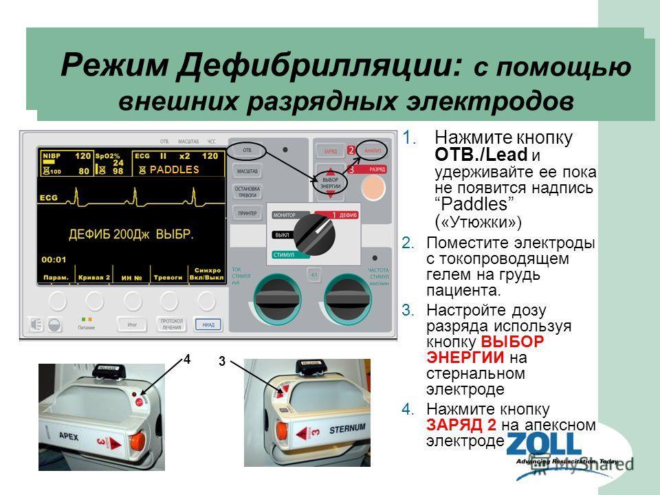 1. Нажмите кнопку ОТВ./Lead и удерживайте ее пока не появится надпись Paddles ( «Утюжки») 2. Поместите электроды с токопроводящем гелем на грудь пациента. 3. Настройте дозу разряда используя кнопку ВЫБОР ЭНЕРГИИ на стернальном электроде 4. Нажмите кн