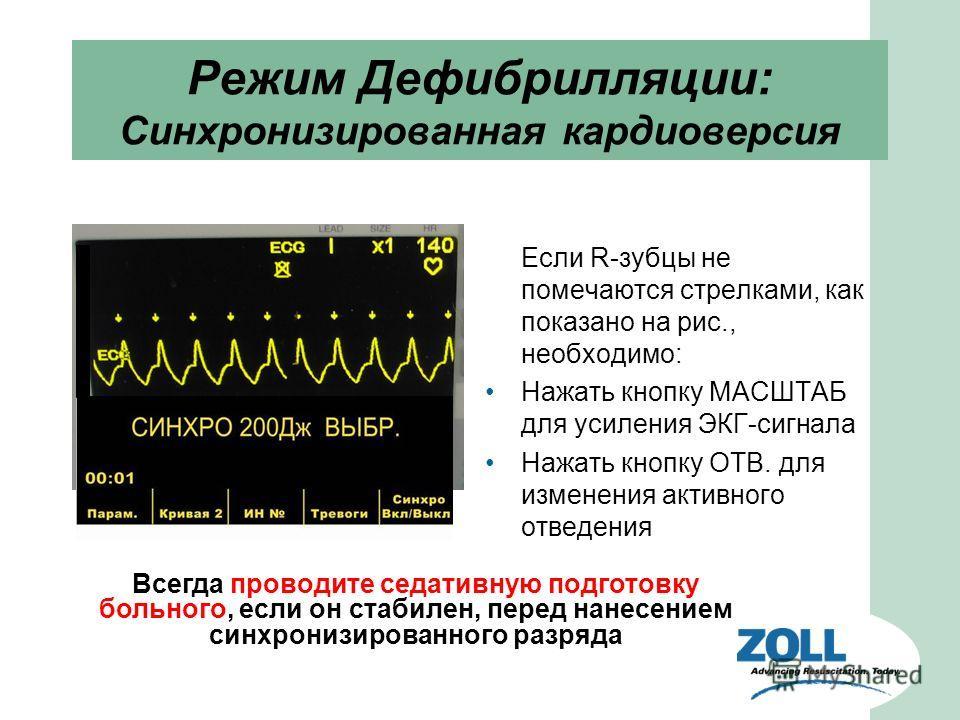 Режим Дефибрилляции: Синхронизированная кардиоверсия Если R-зубцы не помечаются стрелками, как показано на рис., необходимо: Нажать кнопку МАСШТАБ для усиления ЭКГ-сигнала Нажать кнопку ОТВ. для изменения активного отведения Всегда проводите седативн