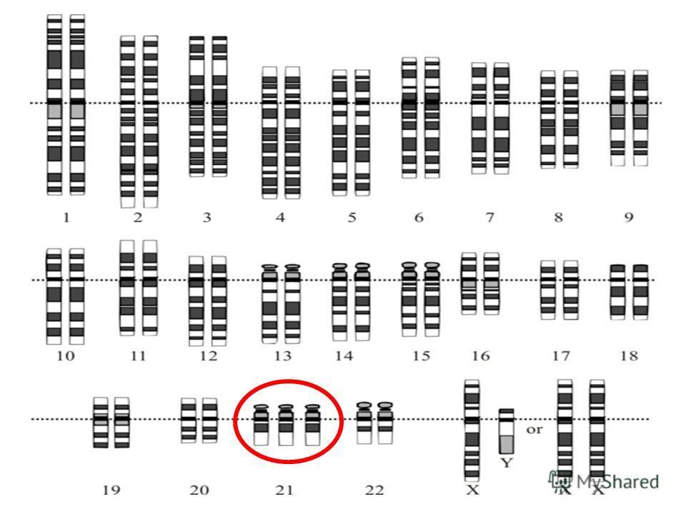 Присутствие в кариотипе у человека трёх хромосом 21-й пары вызывает болезнь Дауна