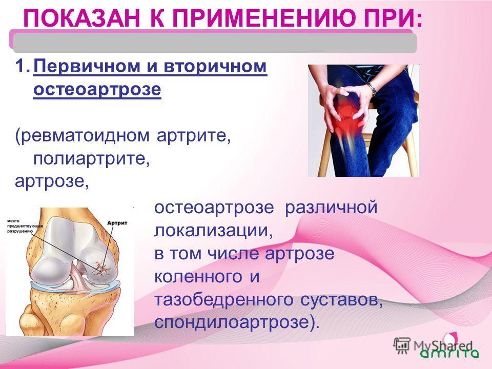 ПОКАЗАН К ПРИМЕНЕНИЮ ПРИ: 1. Первичном и вторичном остеоартрозе (ревматоидном артрите, полиартрите, артрозе, остеоартрозе различной локализации, в том числе артрозе коленного и тазобедренного суставов, спондилоартрозе).
