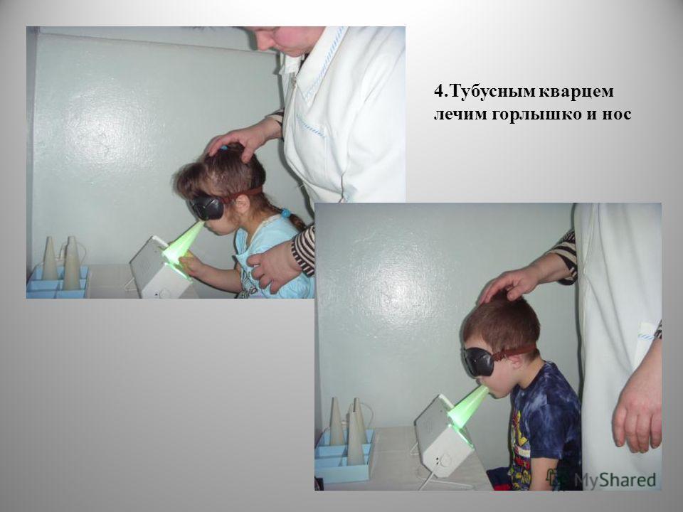 4. Тубусным кварцем лечим горлышко и нос
