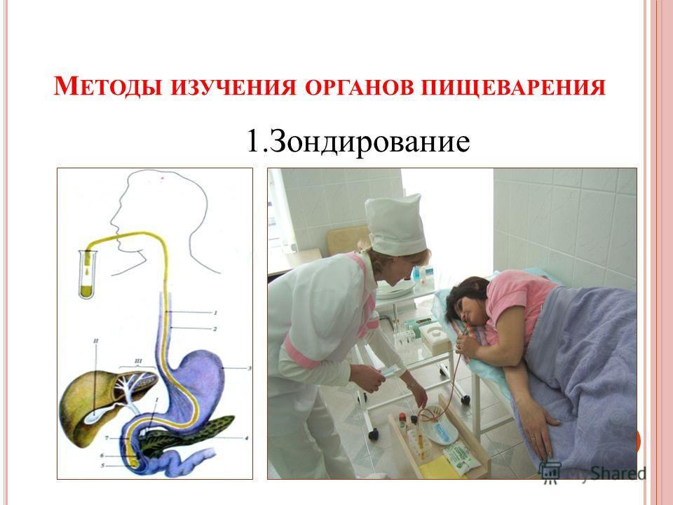М ЕТОДЫ ИЗУЧЕНИЯ ОРГАНОВ ПИЩЕВАРЕНИЯ 1.Зондирование