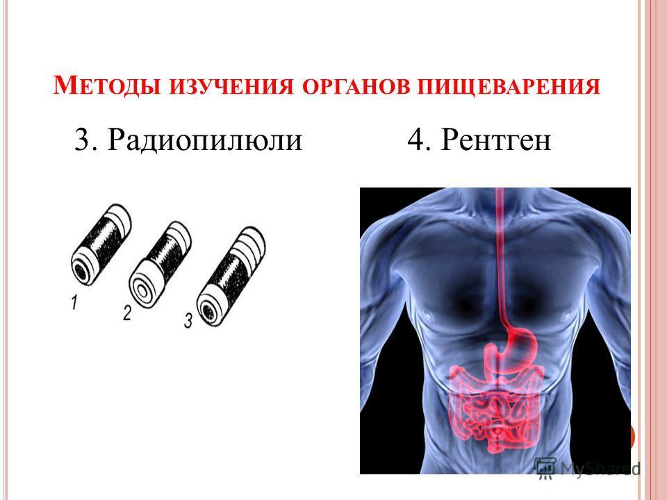 М ЕТОДЫ ИЗУЧЕНИЯ ОРГАНОВ ПИЩЕВАРЕНИЯ 3. Радиопилюли 4. Рентген