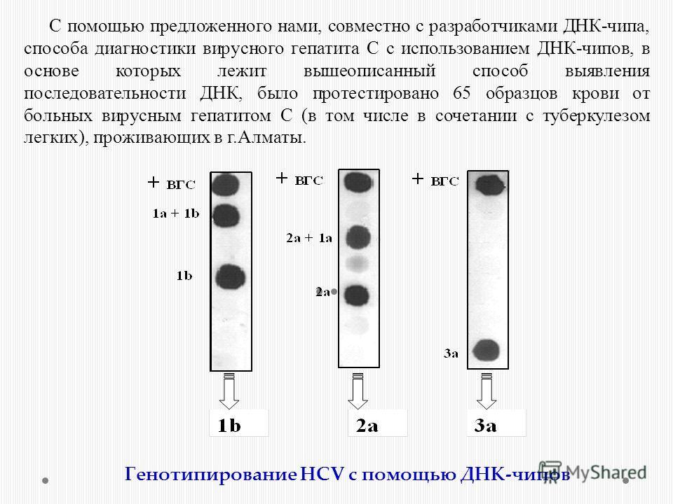 С помощью предложенного нами, совместно с разработчиками ДНК-чипа, способа диагностики вирусного гепатита С с использованием ДНК-чипов, в основе которых лежит вышеописанный способ выявления последовательности ДНК, было протестировано 65 образцов кров