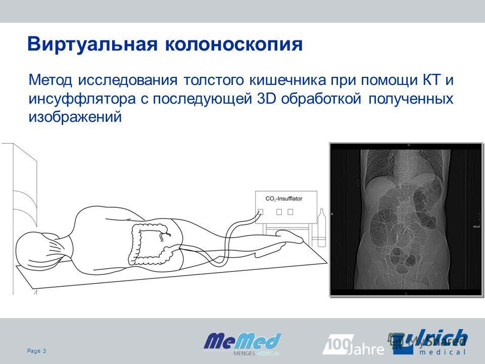 Page 3 Метод исследования толстого кишечника при помощи КТ и инсуффлятора с последующей 3D обработкой полученных изображений Виртуальная колоноскопия