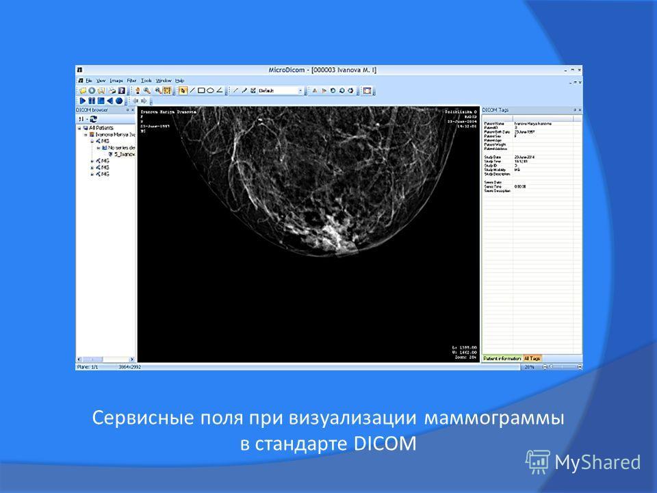 Сервисные поля при визуализации маммограммы в стандарте DICOM