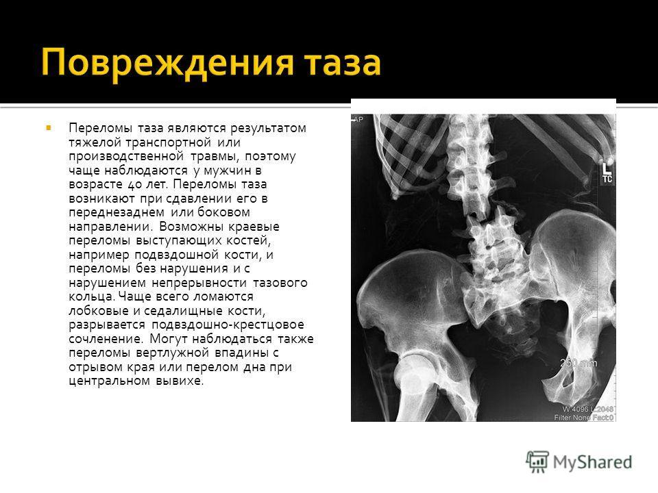 Переломы таза являются результатом тяжелой транспортной или производственной травмы, поэтому чаще наблюдаются у мужчин в возрасте 40 лет. Переломы таза возникают при сдавлении его в переднезаднем или боковом направлении. Возможны краевые переломы выс