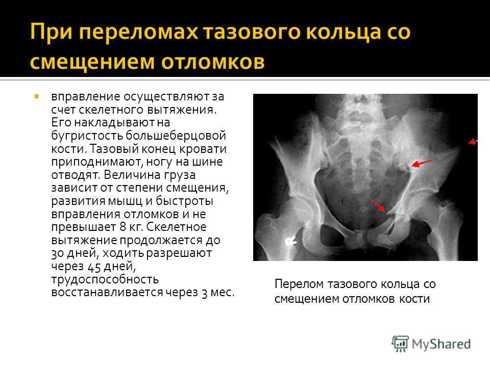 вправление осуществляют за счет скелетного вытяжения. Его накладывают на бугристость большеберцовой кости. Тазовый конец кровати приподнимают, ногу на шине отводят. Величина груза зависит от степени смещения, развития мышц и быстроты вправления отлом