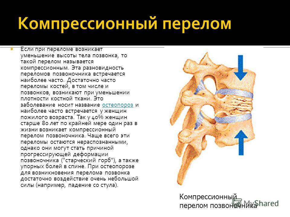 Если при переломе возникает уменьшение высоты тела позвонка, то такой перелом называется компрессионным. Эта разновидность переломов позвоночника встречается наиболее часто. Достаточно часто переломы костей, в том числе и позвонков, возникают при уме