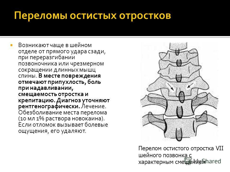 Возникают чаще в шейном отделе от прямого удара сзади, при переразгибании позвоночника или чрезмерном сокращении длинных мышц спины. В месте повреждения отмечают припухлость, боль при надавливании, смещаемость отростка и крепитацию. Диагноз уточняют