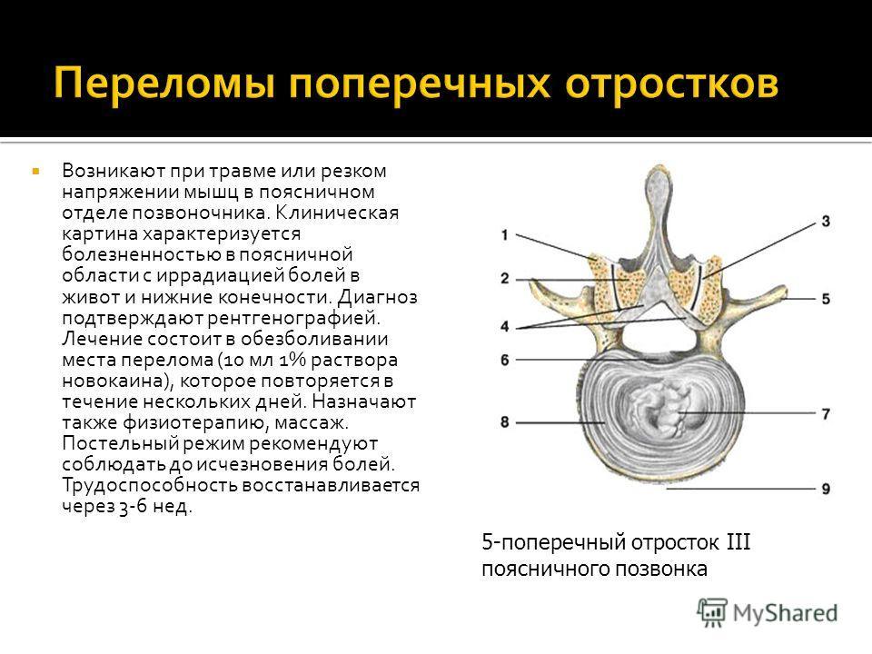 Возникают при травме или резком напряжении мышц в поясничном отделе позвоночника. Клиническая картина характеризуется болезненностью в поясничной области с иррадиацией болей в живот и нижние конечности. Диагноз подтверждают рентгенографией. Лечение с
