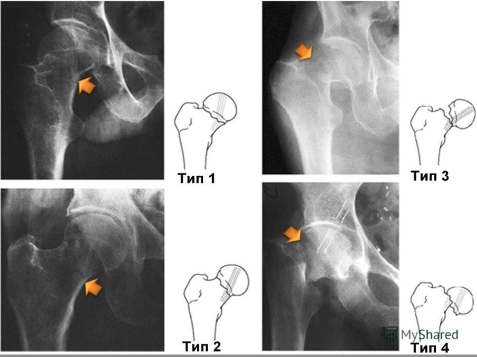 I тип - переломы в подвертельной зоне без смещения; II типа - двухфрагментный перелом: а) поперечный; б) косой перелом с малым вертелом на проксимальном фрагменте; в) косой перелом с малым вертелом на дистальном фрагменте; III тип - трехфрагментные п