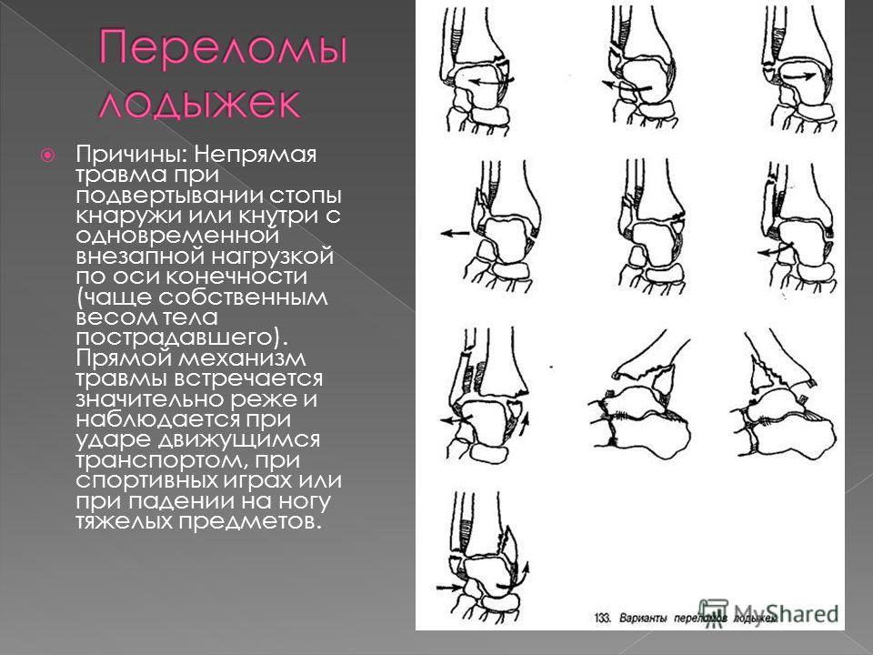 Вариант остеосинтеза определяется типом перелома. При поперечном переломе сопоставить и скрепить отломки можно с помощью специальной медицинской проволоки и спиц. Такую операцию называют именем ее изобретателя – Вебера. Иногда отломки успешно скрепля