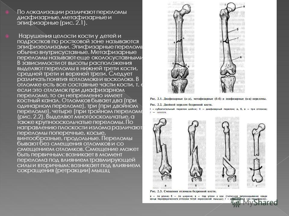 Выделяют переломы открытые и закрытые. Кожа над переломом и другие мягкие ткани при открытом переломе могут быть повреждены травмирующей силой, ломающей кость, это первично- открытые переломы; если мягкие ткани и кожа перфорированы изнутри острым кон
