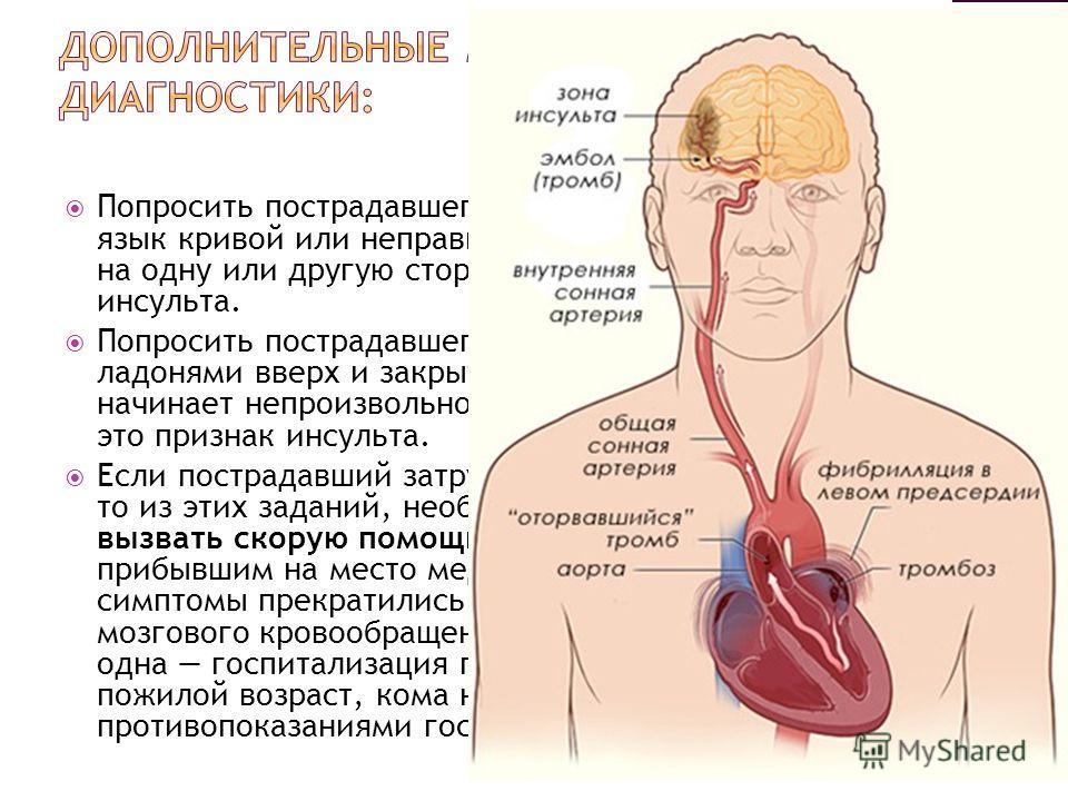 Попросить пострадавшего высунуть язык. Если язык кривой или неправильной формы и западает на одну или другую сторону, то это тоже признак инсульта. Попросить пострадавшего вытянуть руки вперёд ладонями вверх и закрыть глаза. Если одна из них начинает