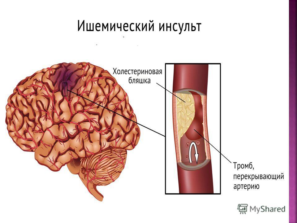 Ишемический инсульт, или инфаркт мозга. Чаще всего возникает у больных старше 60 лет, имеющих в анамнезе инфаркт миокарда, ревматические пороки сердца, нарушение сердечного ритма и проводимости, сахарный диабет. Большую роль в развитии ишемического и