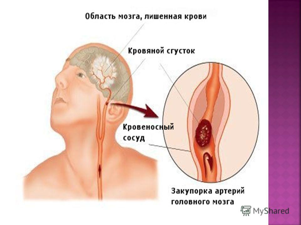 Для гипертензивных внутримозговых кровоизлияний характерно острое течение заболевания, наличие общемозговой, менингеальной, очаговой, дислокационной симптоматики. Клиническая картина заболевания определяется прежде всего локализацией геморрагического