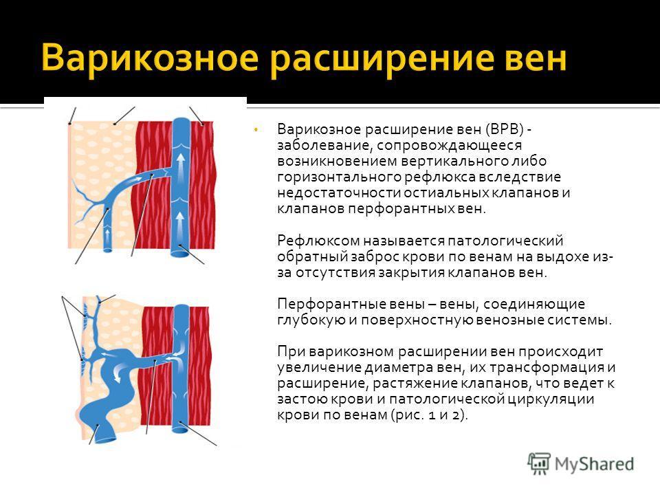 Варикозное расширение вен (ВРВ) - заболевание, сопровождающееся возникновением вертикального либо горизонтального рефлюкса вследствие недостаточности остиальных клапанов и клапанов перфорантных вен. Рефлюксом называется патологический обратный заброс