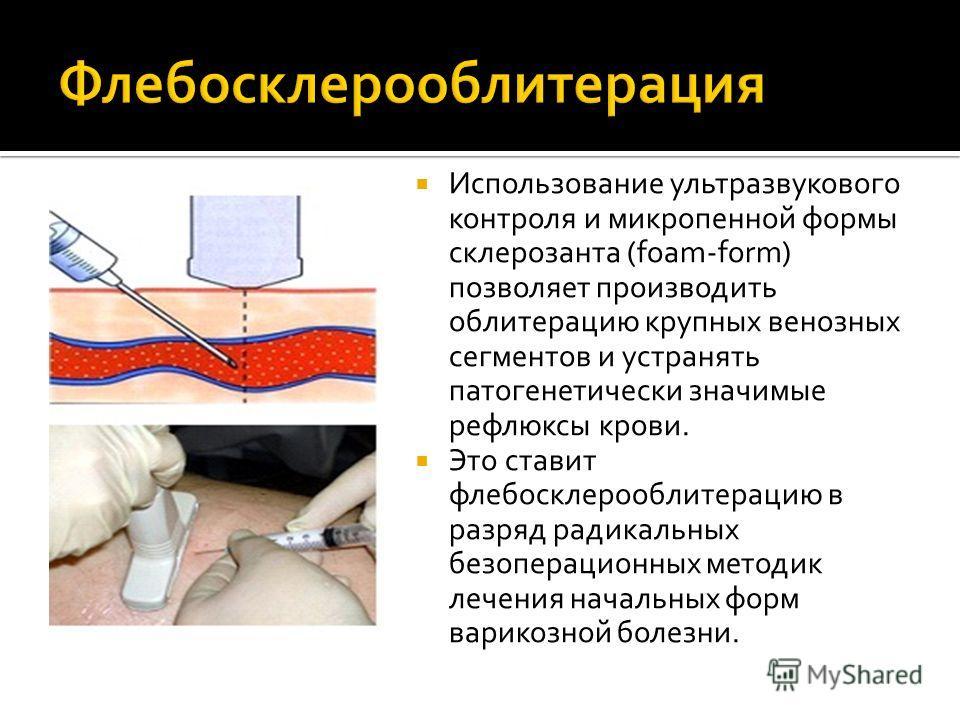 Использование ультразвукового контроля и микропенной формы склерозанта (foam-form) позволяет производить облитерацию крупных венозных сегментов и устранять патогенетически значимые рефлюксы крови. Это ставит флебосклерооблитерацию в разряд радикальны