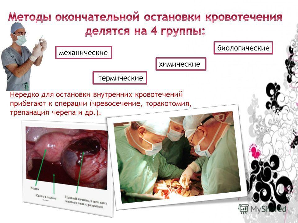 механические термические химические биологические Нередко для остановки внутренних кровотечений прибегают к операции (чревосечение, торакотомия, трепанация черепа и др.).
