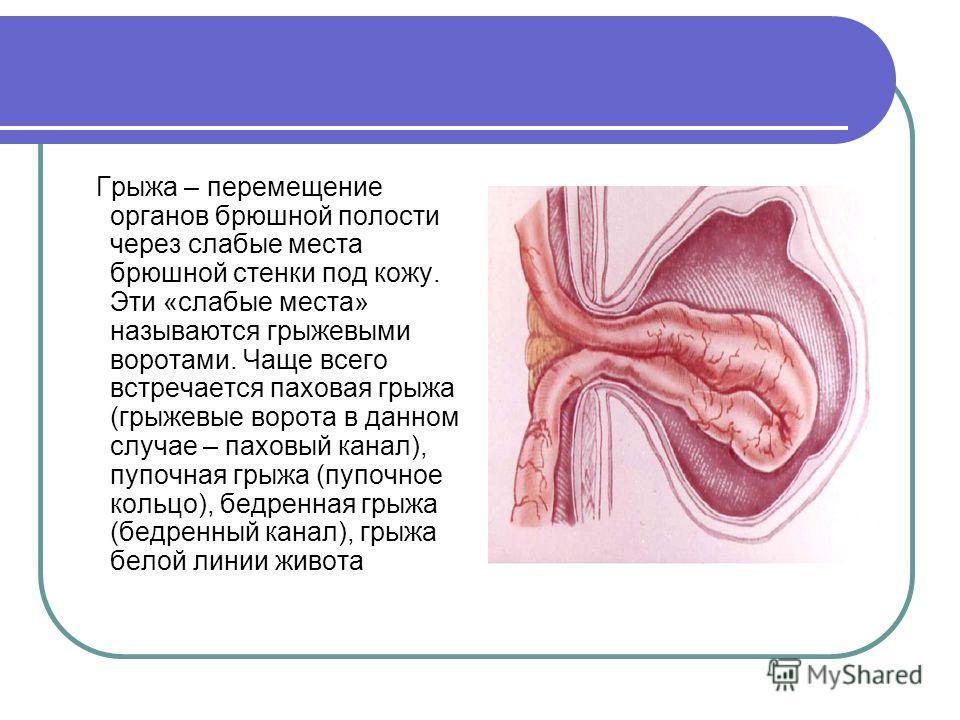 Грыжа – перемещение органов брюшной полости через слабые места брюшной стенки под кожу. Эти «слабые места» называются грыжевыми воротами. Чаще всего встречается паховая грыжа (грыжевые ворота в данном случае – паховый канал), пупочная грыжа (пупочное
