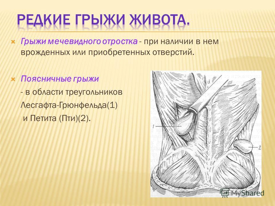 Грыжи мечевидного отростка - при наличии в нем врожденных или приобретенных отверстий. Поясничные грыжи - в области треугольников Лесгафта-Грюнфельда(1) и Петита (Пти)(2).
