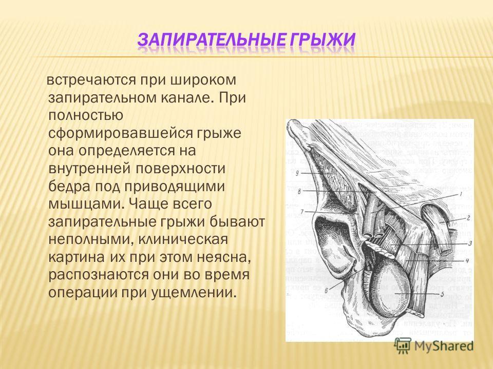 встречаются при широком запирательном канале. При полностью сформировавшейся грыже она определяется на внутренней поверхности бедра под приводящими мышцами. Чаще всего запирательные грыжи бывают неполными, клиническая картина их при этом неясна, расп
