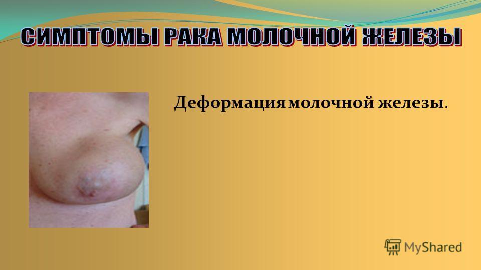 Деформация молочной железы.
