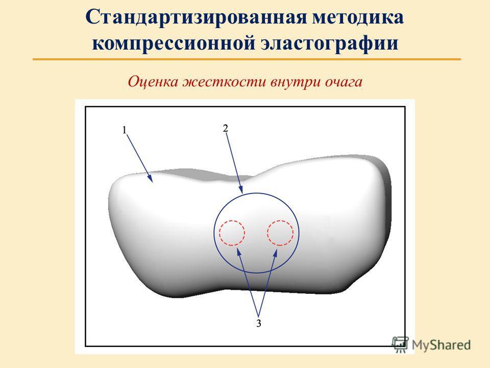 Оценка жесткости внутри очага Стандартизированная методика компрессионной эластографии