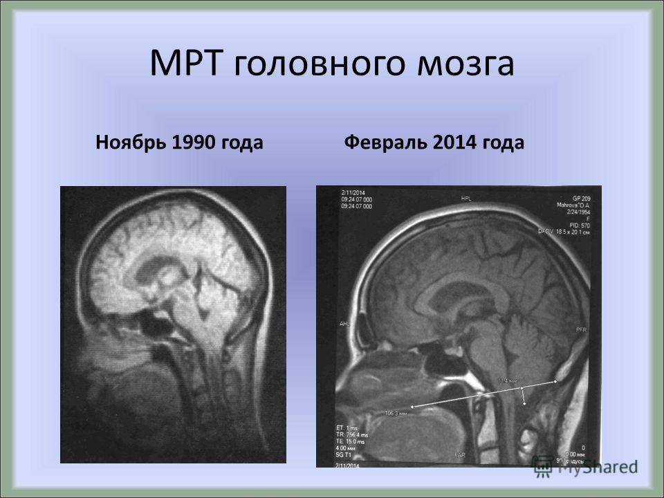 МРТ головного мозга Ноябрь 1990 года Февраль 2014 года