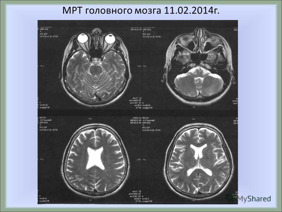 МРТ головного мозга 11.02.2014 г.