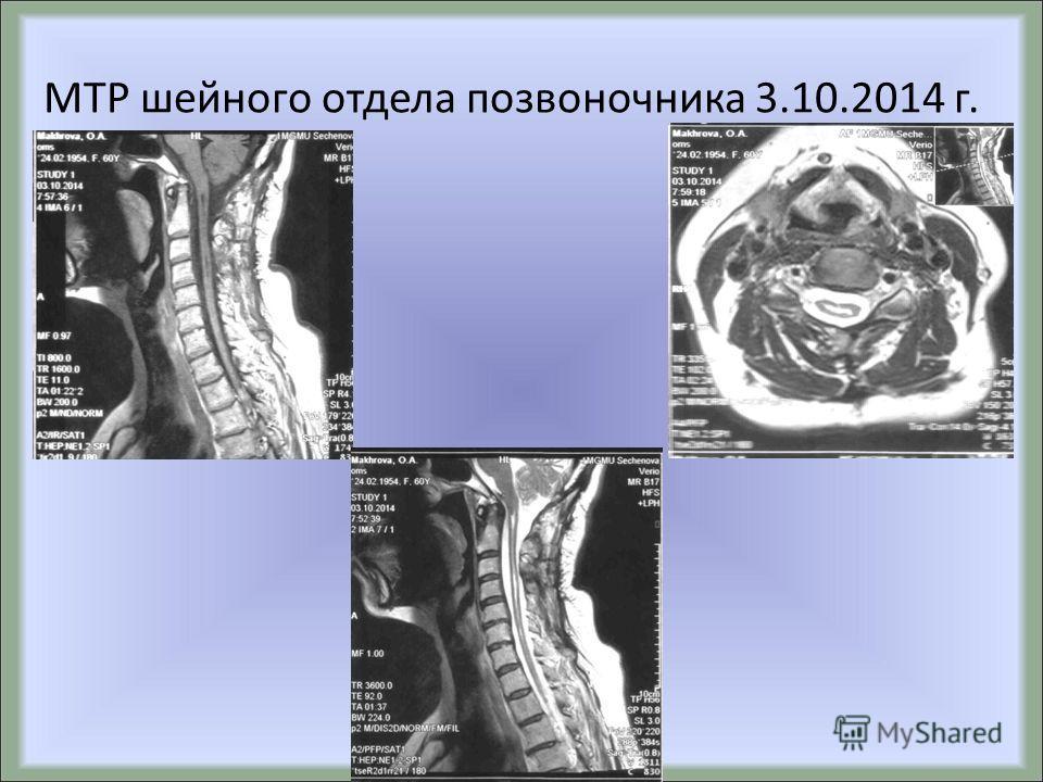 МТР шейного отдела позвоночника 3.10.2014 г.