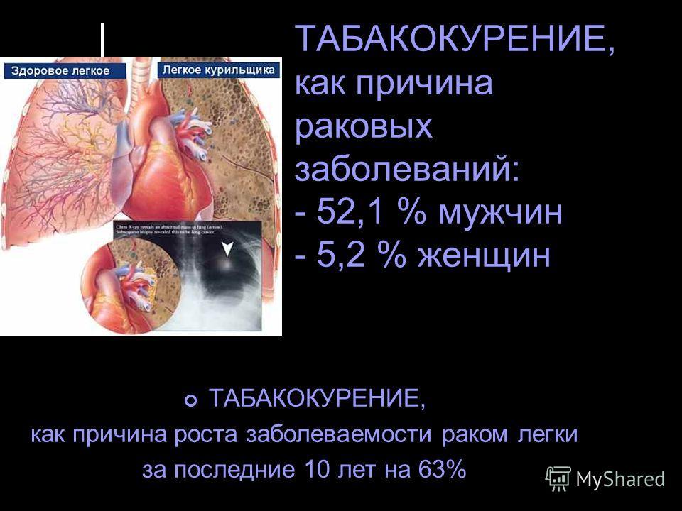 ТАБАКОКУРЕНИЕ, как причина раковых заболеваний: - 52,1 % мужчин - 5,2 % женщин ТАБАКОКУРЕНИЕ, как причина роста заболеваемости раком легки за последние 10 лет на 63%