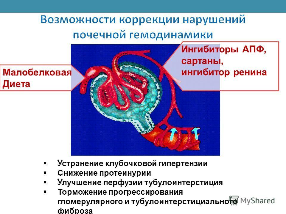 Малобелковая Диета Устранение клубочковой гипертензии Снижение протеинурии Улучшение перфузии тубулоинтерстиция Торможение прогрессирования гломерулярного и тубулоинтерстициального фиброза Ингибиторы АПФ, сартаны, ингибитор ренина