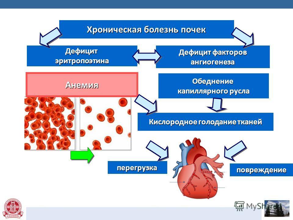 Хроническая болезнь почек Дефицит эритропоэтина Дефицит факторов ангиогенеза Анемия Обеднение капиллярного русла Кислородное голодание тканей перегрузка повреждение