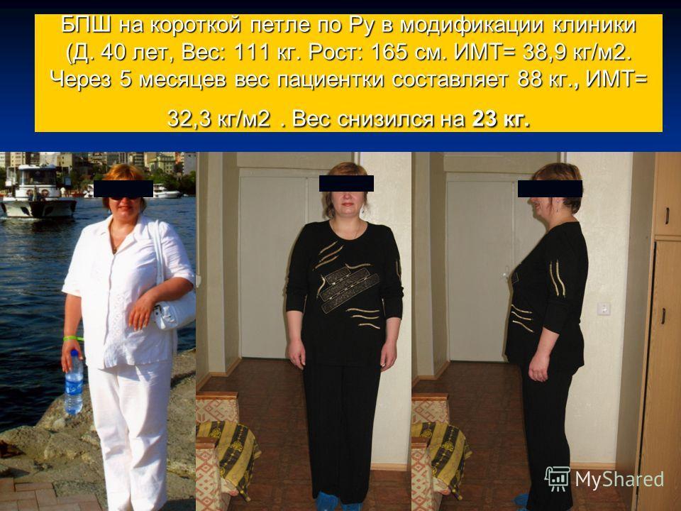 БПШ на короткой петле по Ру в модификации клиники (Д. 40 лет, Вес: 111 кг. Рост: 165 см. ИМТ= 38,9 кг/м 2. Через 5 месяцев вес пациентки составляет 88 кг., ИМТ= 32,3 кг/м 2. Вес снизился на 23 кг.
